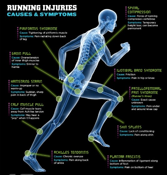 minim-common-running-injuries1